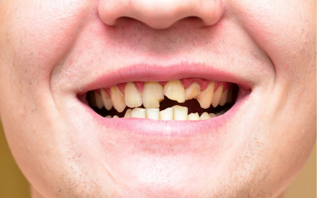 Dental Trauma: What Can I Do If I Have A Broken Tooth?